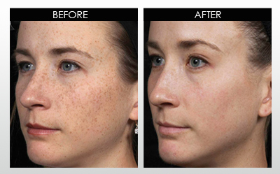 microneedling ved BeWell
