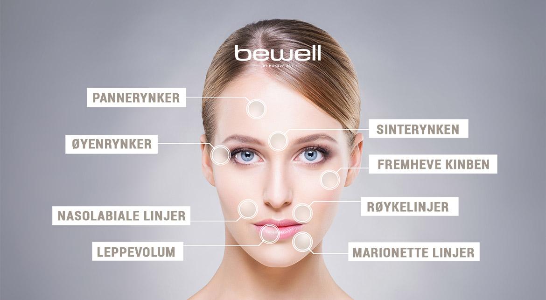 Botox bruksområder