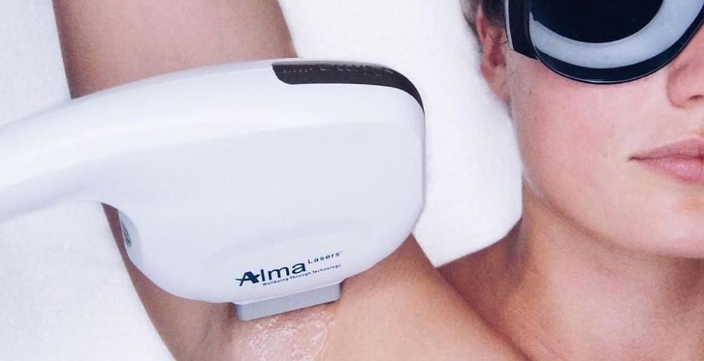 hårfjerning med SHR Laser ved BeWell By Makeup Art